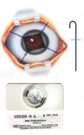 Optitech Eye Care Iris Retractors